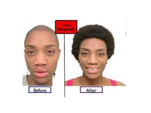 pics of hair growth in 1 year 1 year natural alopecia hair growth success alopecia
