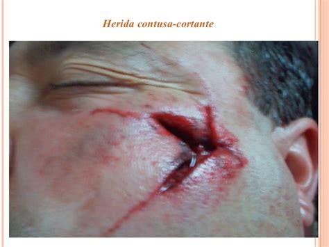 imagenes de la justicia herida heridas quirurgicas