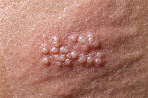 Images Of Herpes In The