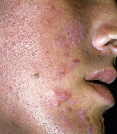 Cm Acne 1 what are the types and stages of acne