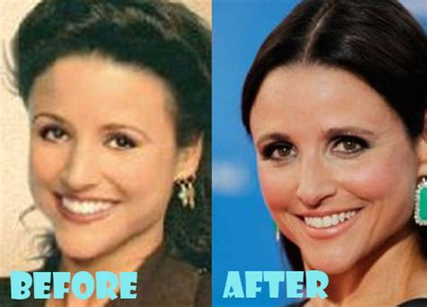 louis licari plastic surgery before louis lacari s bad plastic surgery louis lacari before and