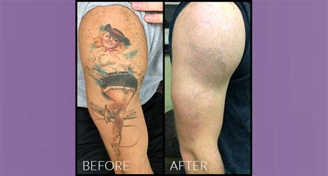 tattoo removal how tattoos removal pictures 1