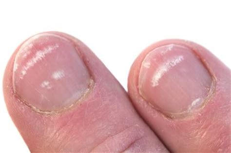 Nail Problems by Fingernail Problems