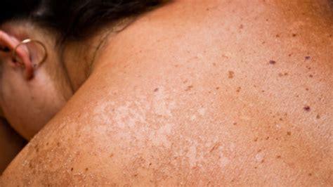 cancer de piel cancer en la piel medicinebtg com