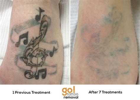 tattoo removal journey 1000 images about tattoo removal in progress on pinterest