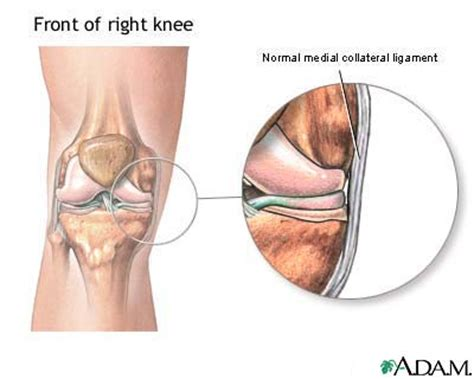 collaterale interno ginocchio collateral knee ligament medial causes symptoms