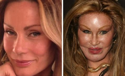 worst celeb plastic surgery 20 worst cases of celebrity plastic surgery gone wrong