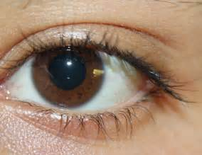 eye colors file picture of brown jpg