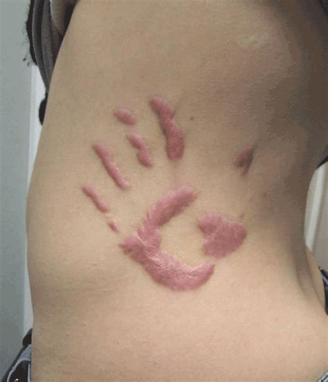 keloid tattoo metaphor of difference scarification