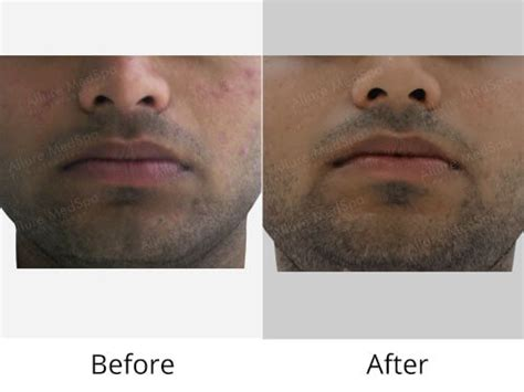 Microdermabrasion Follow Up by Microdermabrasion Information Doctors Cost Pictures