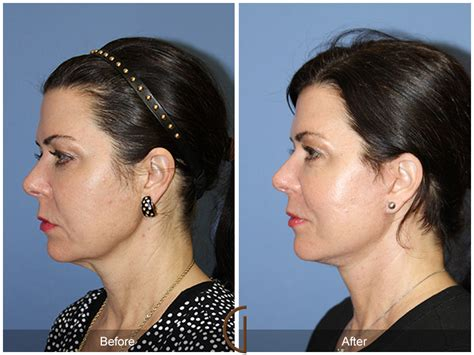 72 best images about before before after orange county facelift 72 orange county