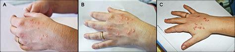 cimici da letto sintomi cimici dei letti patologia