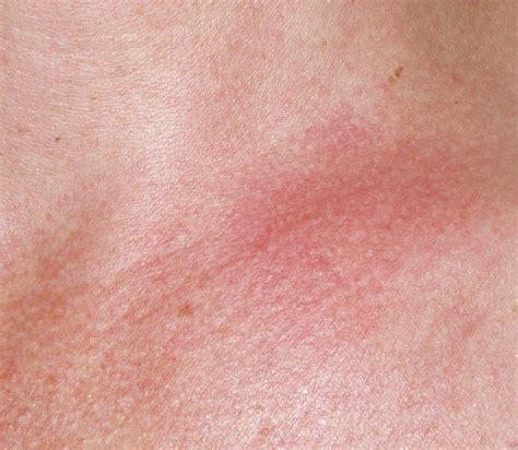 rash on s neck bartonella rashes neck chest chronic lyme disease