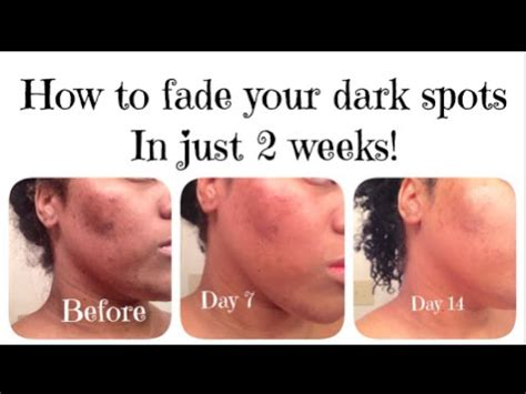 how to fade acne scars dark brown hairs how i faded my dark spots in 2 weeks youtube