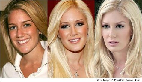 Heidi Got A New Nose To Go With by Heidi Montag Plastic Surgery Before And After Breast