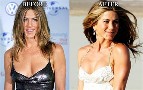 Did Aniston Get Implants by Aniston Breast Implants Before After Picture