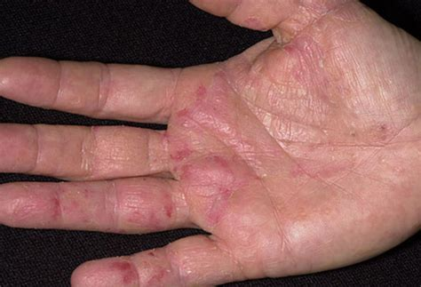 itchy bumps on hands that spread red spots on hands palms back not itchy tiny top