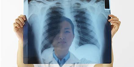 wann wirkt antibiotika bei lungenentzündung wann antibiotika an die bronchitis tribune