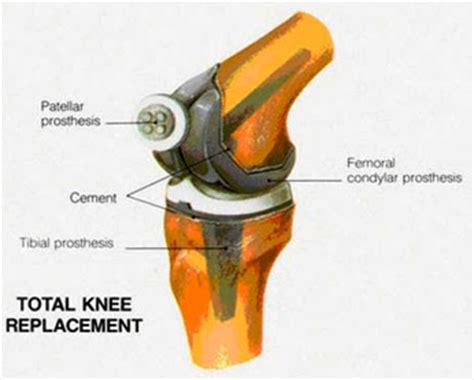 total knee replacement diagram about total knee replacements of iowa