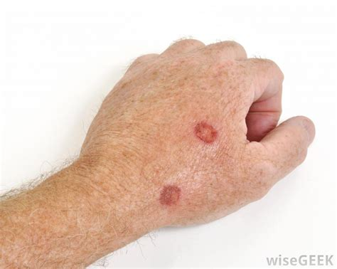 sores on skin what causes an itchy scab with pictures