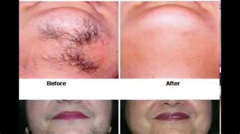 what to do with hair on womans jaw line miami hair removal before and after pictures youtube