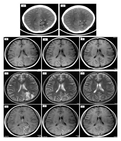 ct scan sections unenhanced axial section ct scan of the patient s brain