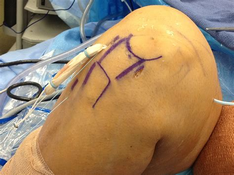 acl surgery cost acl surgery search engine at search