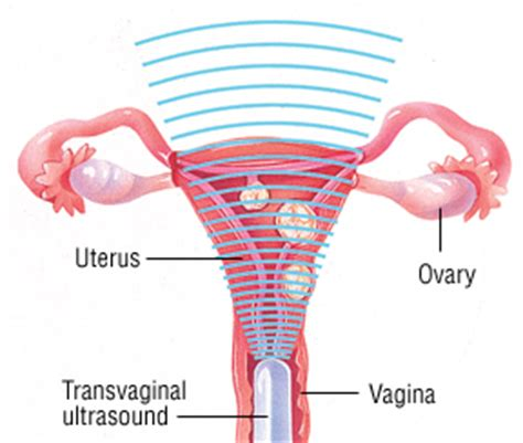 Shedding Thick Uterine Lining by 100 Shedding Uterine Lining While Why The