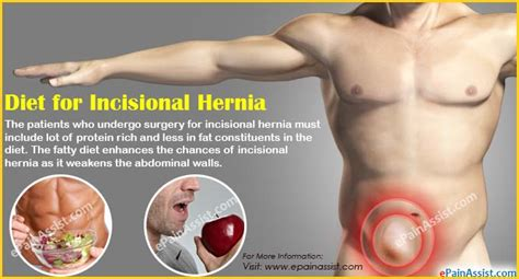incisional hernia home remedies diet prognosis outlook