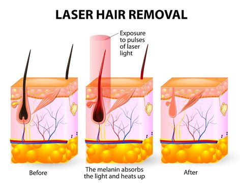 Laser Hair Removal Different Types by How Does Laser Hair Removal Work Health Info
