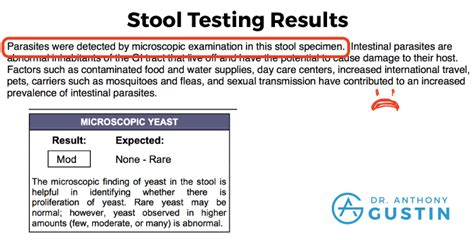 Stool Result by N 1 Ketosis Research Experiment Results Dr Anthony