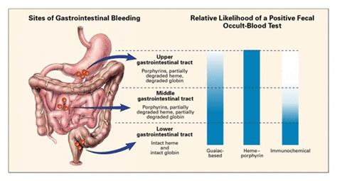 Occult Positive Stool by Occult Gastrointestinal Bleeding Nejm