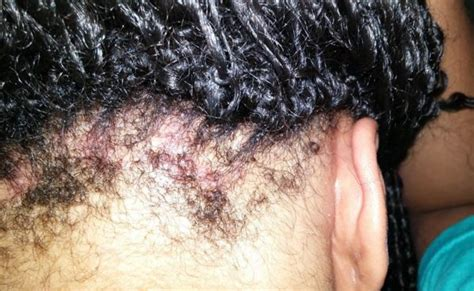 hair bumps from braids scabs on scalp causes get rid treat small random itchy