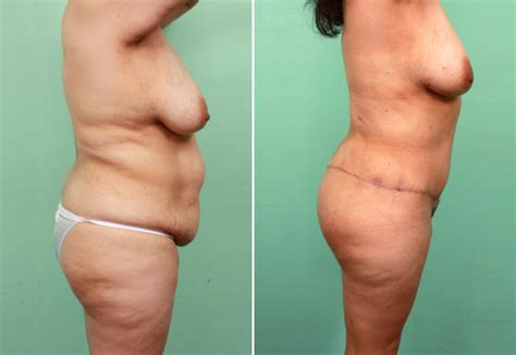 contouring following bariatric surgery and weight loss post bariatric contouring books contouring board certified cosmetic surgery