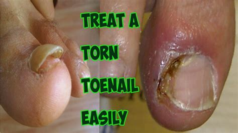 nail detached from nail bed damaged nail bed broken toenail how to treat a torn
