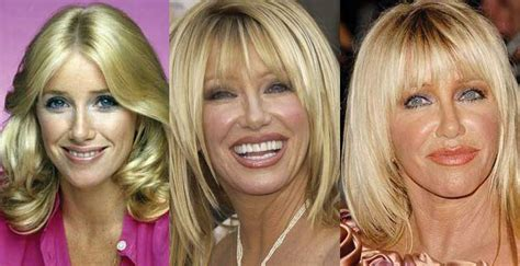 suzanne somers how to change your life suzanne somers plastic surgery before and after pictures 2018