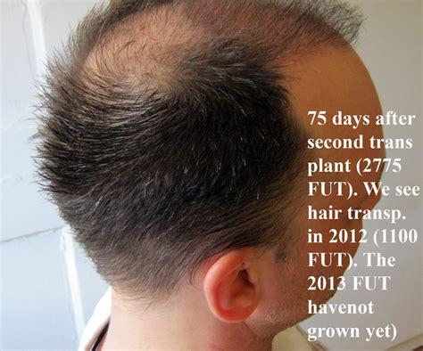fut hong kong hair transplant 75 days after 2775 fut