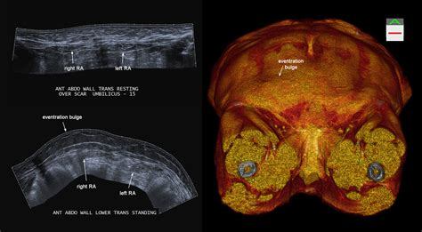 c section scar burning pain abdominal wall case 1 sports medicine imaging