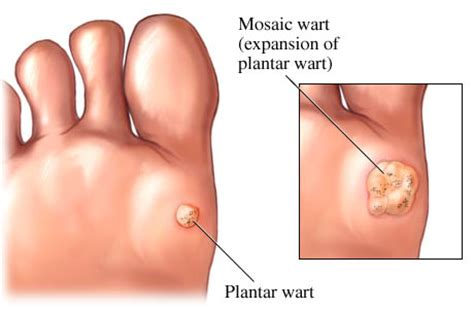 Planters Wart Removal Duct by Plantar Wart Treatment In Punta Gorda Port Fl