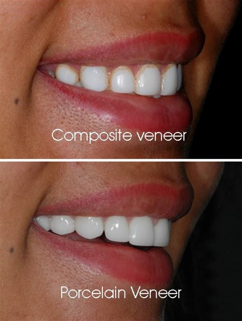 Veneer Komposit santa dentist santa ca 90404 santa
