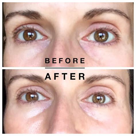 Shiseido Gold Mask shiseido benefiance retinol eye mask review