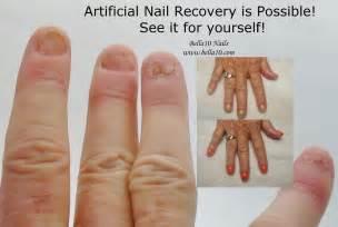 bella10 nails