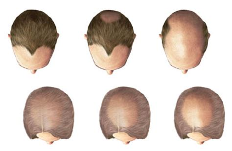 circular pattern hair loss hair loss what you should know dermatologist the best