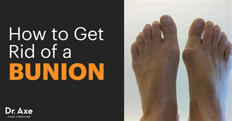 how to get rid of swelling after c section bunion symptoms causes natural treatments dr axe