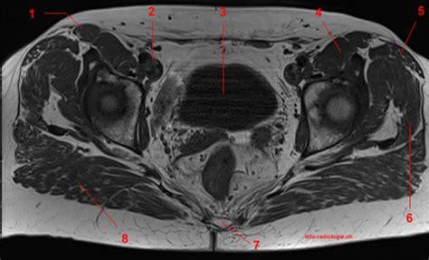 muscolo otturatore interno anatomia dell anca risonanza magnetica con legenda