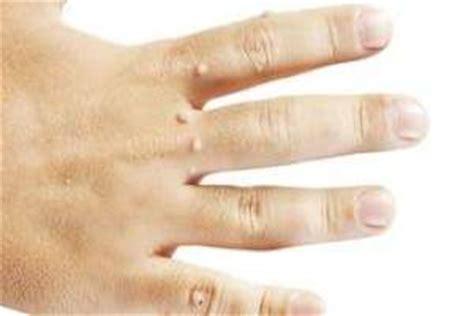 imagenes de verrugas blancas c 243 mo curar verrugas remedios caseros