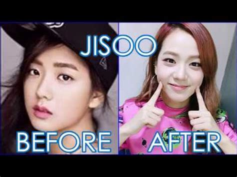 blackpink plastic surgery blackpink before and after youtube
