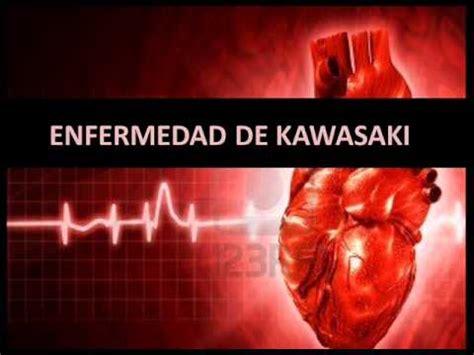 imagenes enfermedad kawasaki niños enfermedad de kawasaki fisiopatolog 237 a youtube