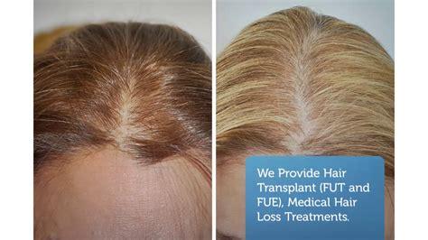 hair transplant orlando hair restoration orlando best best hair transplant orlando revive hair restoration in