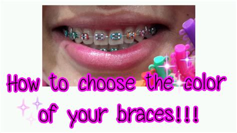 color for braces how to choose the color of your braces